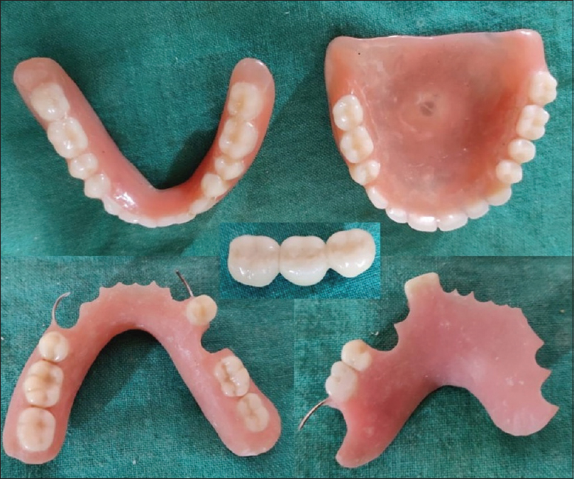 Figure 4: Representative picture of different types of dental prosthesis which can be helpful in the identification of the raped victim and the accused as well